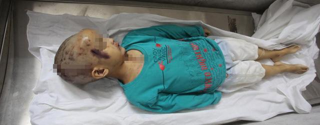 江西5岁男孩因不愿午睡被继母殴打致死